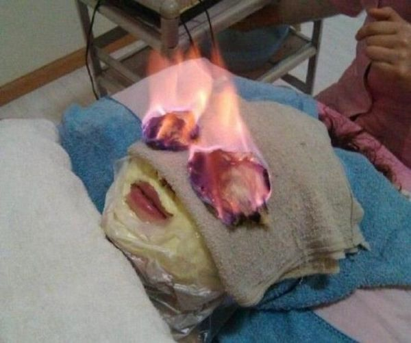 Incendiarsi la faccia