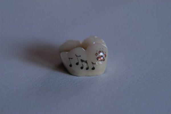 tatuaggi sui denti: note musicali