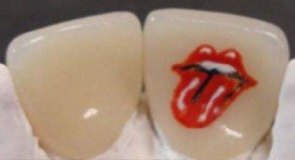 tatuaggi sui denti: rolling-stone