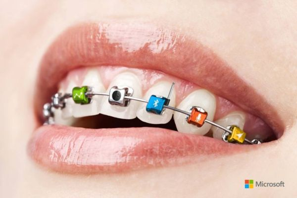 apparecchio microsoft braces