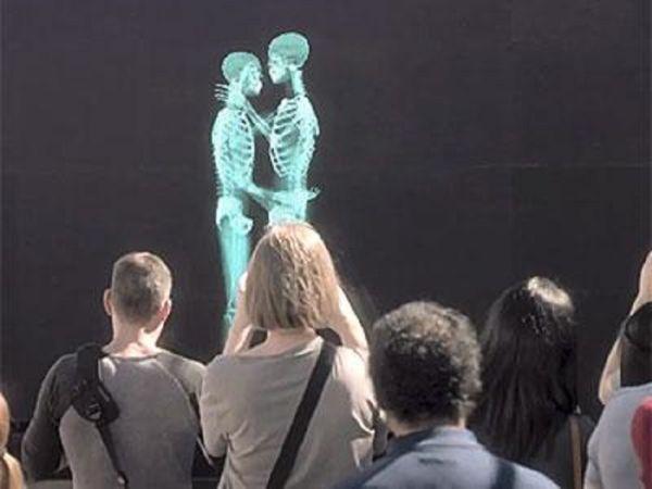 Bacio dietro radiografia